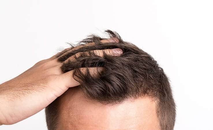 How Much Does A Hair Transplant Cost in Turkey?