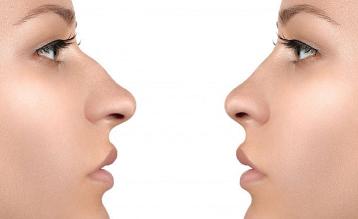 Why Turkey is the Best Place to Get Rhinoplasty?