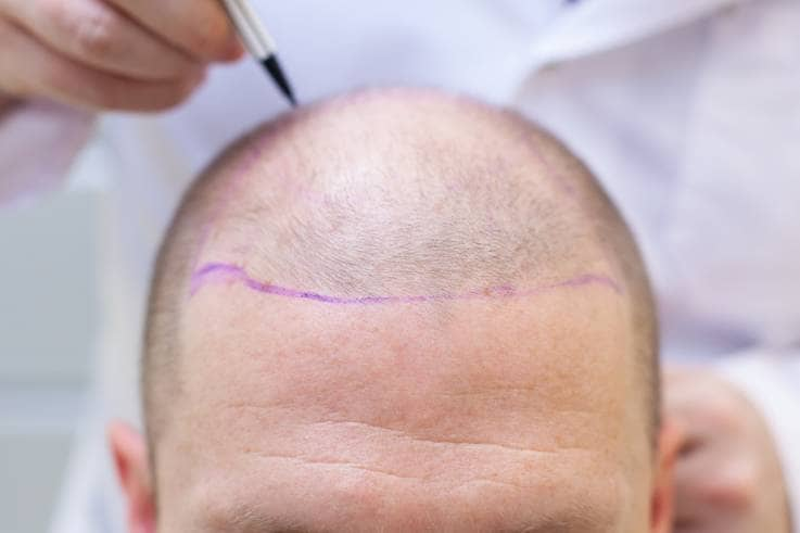 Where Can I Get Hair Transplant in Turkey?